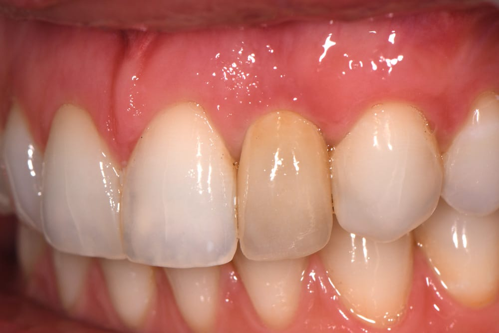 single-implant-crown-before