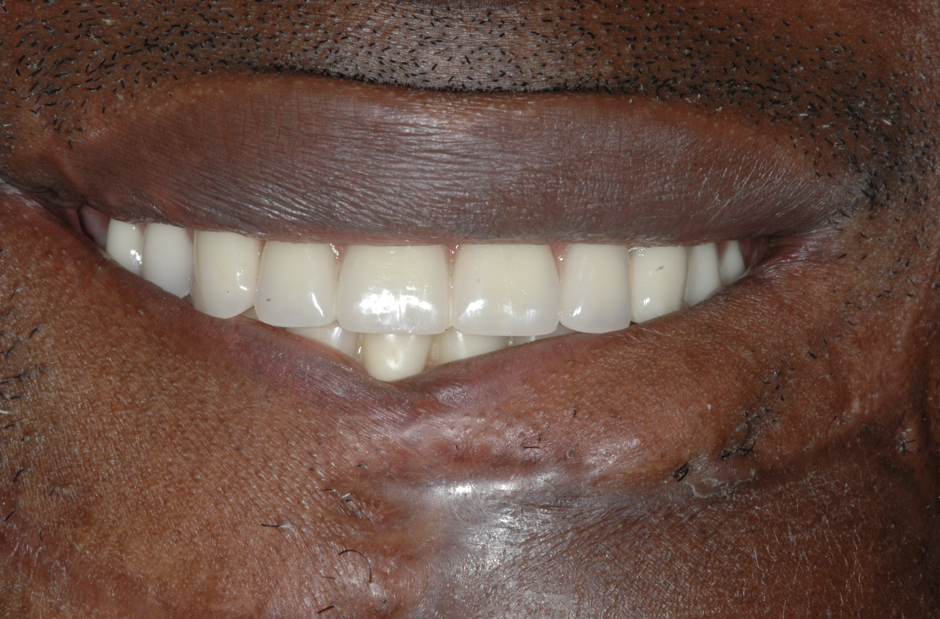 Jaw in a Day Patient teeth